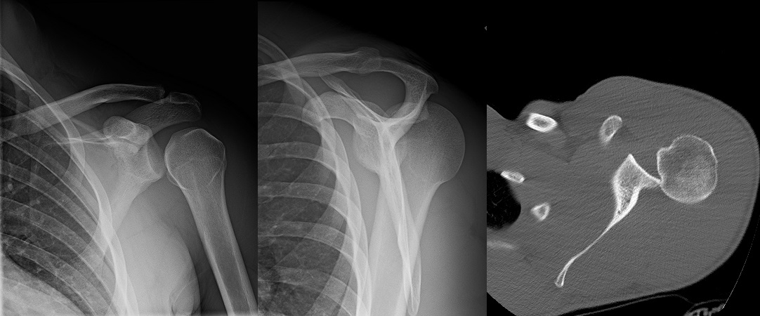 posterior shoulder dislocation